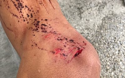 Guest post: Bike injury recovery tips